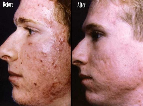 voor en na acne behandeling mannen